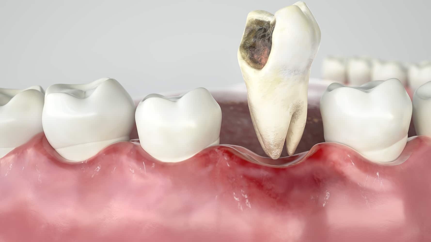 Tooth Extractions In Houston Tx Fms Dental Emergency Dentist Houston